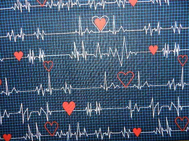EKG Anyone-
